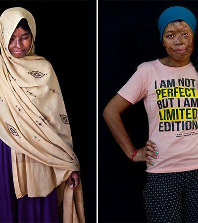 Retratos íntimos de mulheres atacadas com ácido contam suas histórias de força e sobrevivência