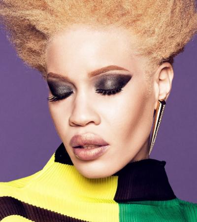Conheça Diandra Forest, primeira modelo albina a ser escolhida como rosto de uma campanha