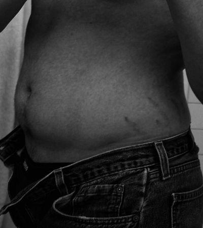 Quem é o tatuador brasileiro que usa técnicas de tattoo para apagar estrias
