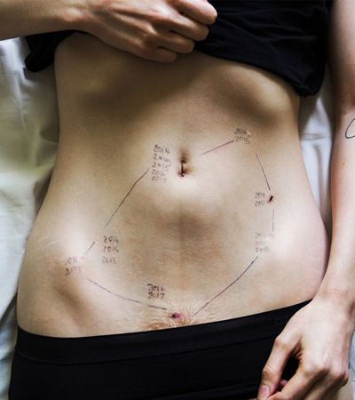 Foto impactante das cicatrizes da endometriose é uma das vencedoras de concurso internacional de fotografias