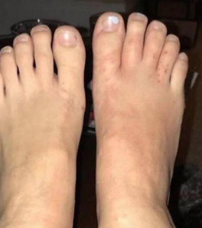 Alerta! Turistas andam descalços na areia e contraem parasita que faz 'túnel' na pele dos pés