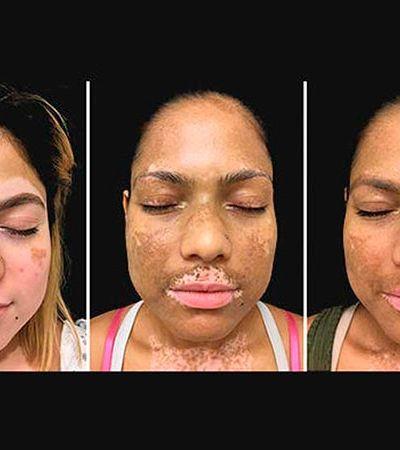 Tratamento inovador promete recuperar tom de pele de quem sofre com vitiligo