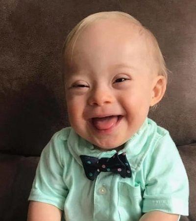 Bebê com síndrome de Down dá show de fofura e ganha concurso fotográfico