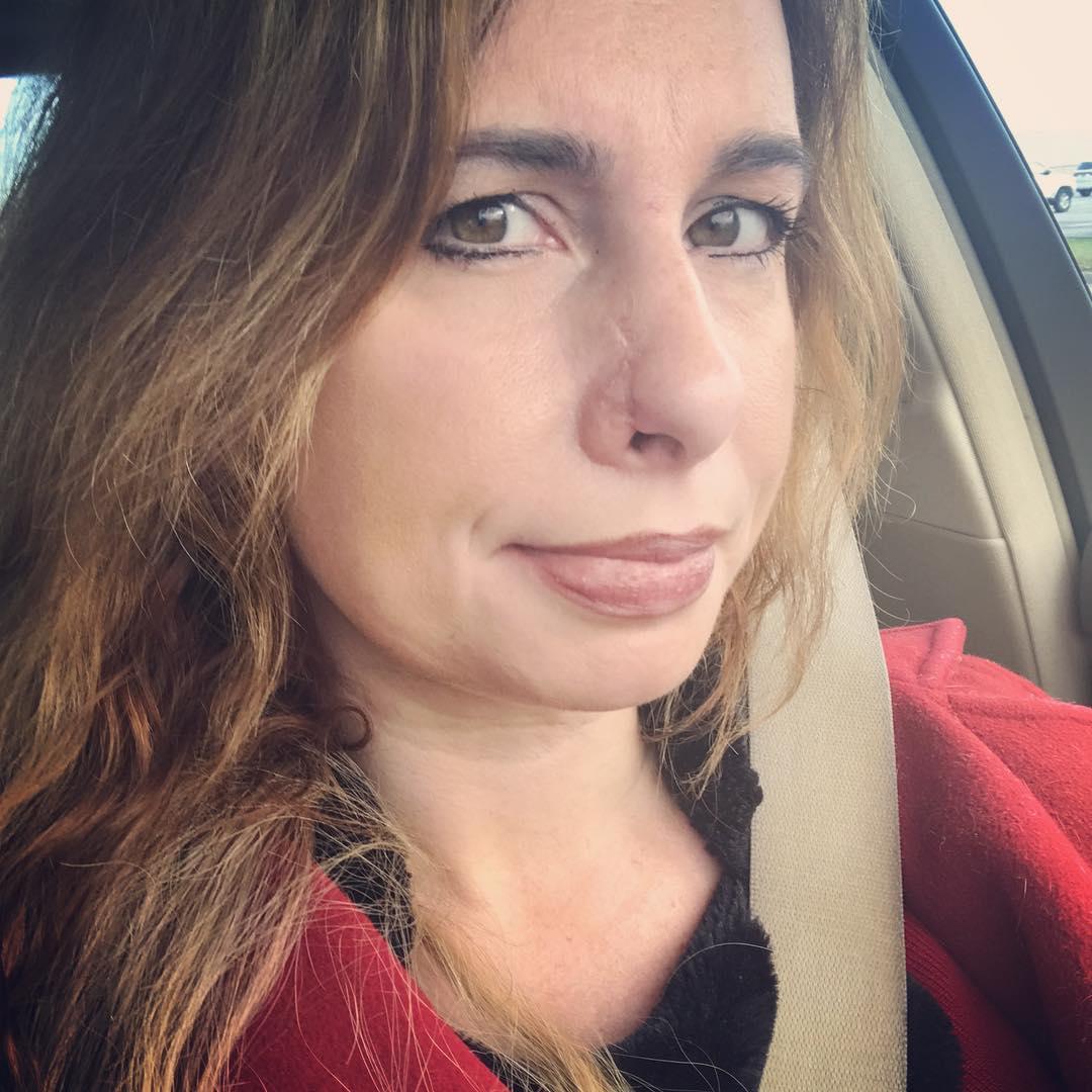 Lauren recuperada da cirurgia