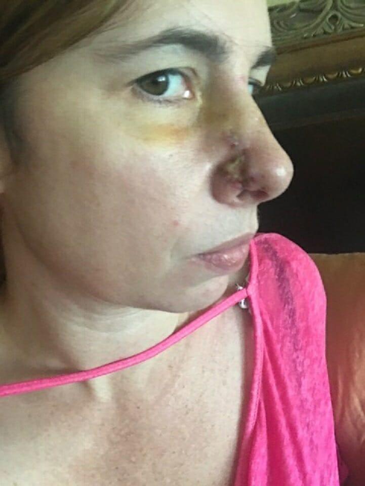 Lauren descobriu um tipo de câncer de pele