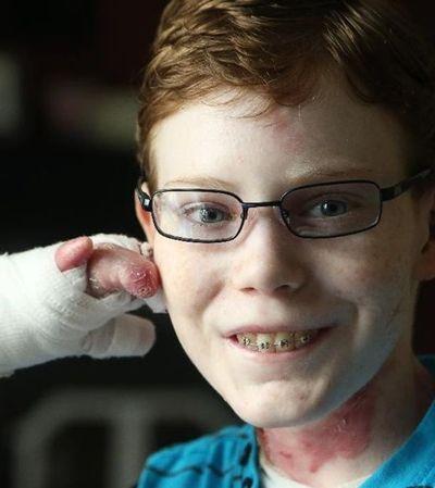 Morre aos 17 anos o garoto 'frágil como uma borboleta' que nos ensinou tanto sobre a vida