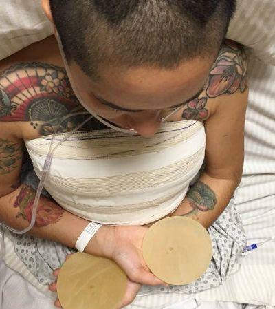 Jornada de artista para retirar próteses de silicone nos faz pensar sobre a indústria dabeleza