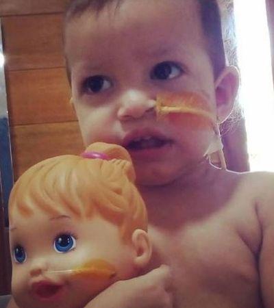 Mãe adapta sonda em boneca para filha não se sentir 'diferente'