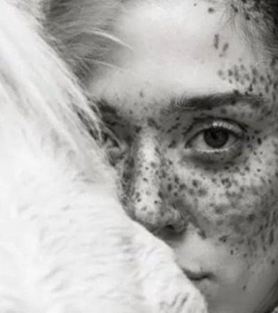 Modelo dá show de beleza e aceitação com suas sardas na Semana de Moda de NY
