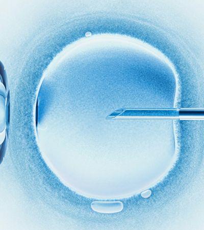 Por que mulheres bem-sucedidas estão congelando seus óvulos?