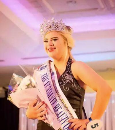 Conheça Kate Grant, a 1ª modelo com síndrome de Down a vencer um concurso internacional de beleza