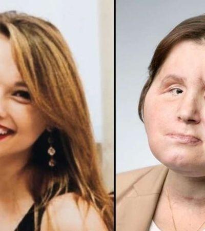 A comovente história da mulher mais jovem a transplantar a face