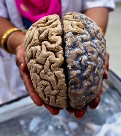 Um rolê por dentro do museu dos cérebros humanos na Índia