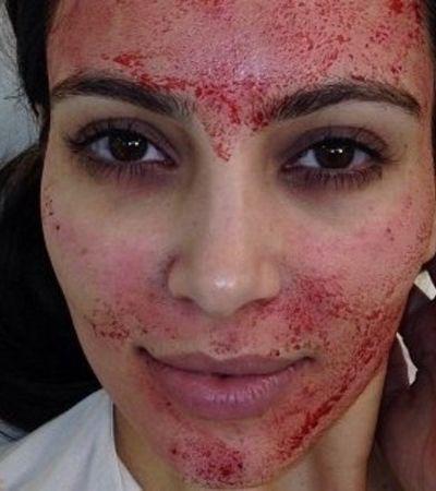 Tratamento 'vampírico' divulgado por Kim Kardashian pode ter exposto pessoas ao HIV