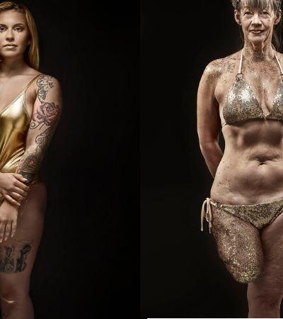 Beleza diversa: agência de modelos cria campanha que destaca marcas, cicatrizes e deficiências