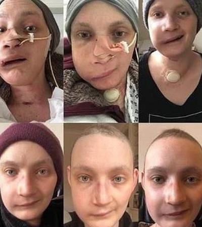 Jovem fotografa seu rosto todos os dias após passar por reconstrução facial e registra recuperação