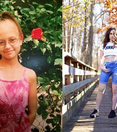 Garota que teve perna amputada aos 11 por câncer torna-se modelo 20 anos depois