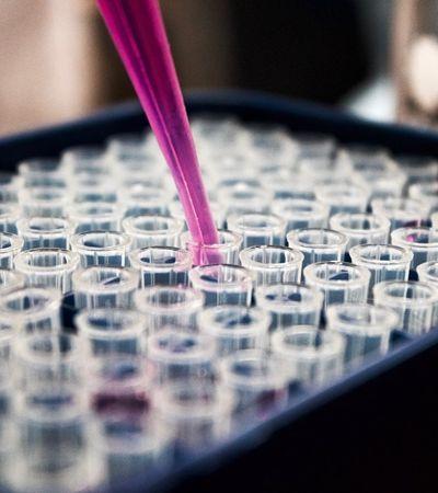 Google usa inteligência artificial para detectar e combater câncer de mama