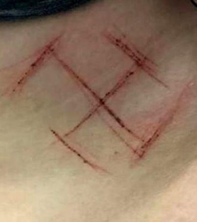 O que se sabe até agora sobre o caso de agressão e suástica em mulher com camiseta #elenao