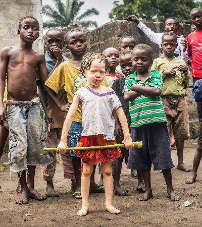 Concurso de miss e mister albinismo celebra a diversidade no Quênia