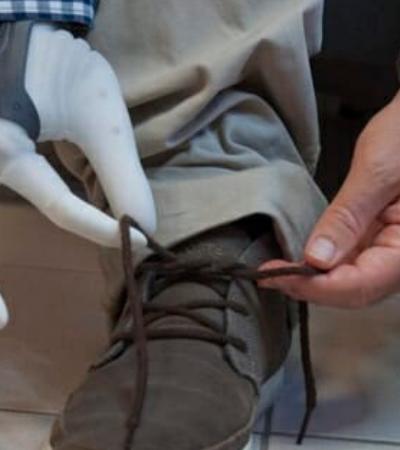 Médicos conectam mão robótica aos nervos de uma paciente