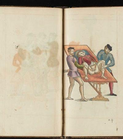 Ilustrações revelam o horror das remoções cirúrgicas de partes do corpo no século 19
