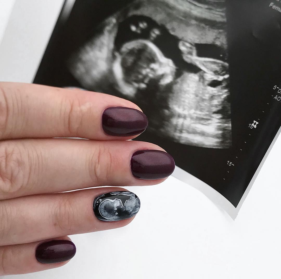 unha de ultrassom 1