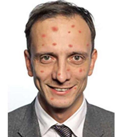 Líder antivacinas na Itália é internado com catapora