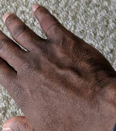 'Pertencimento': Pesquisador viraliza ao se emocionar com curativo em seu tom de pele
