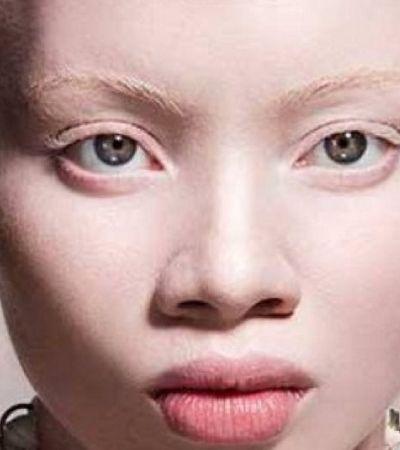 Em edição especial sobre origem da vida, Vogue tem 1ª modelo albina em sua capa