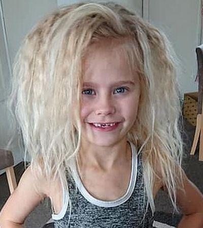 Esta garota sofre de uma síndrome raríssima: é impossível pentear o cabelo dela