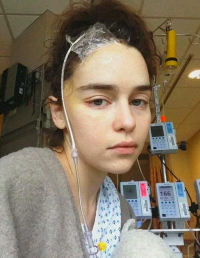 emilia clarke aneurisma 2