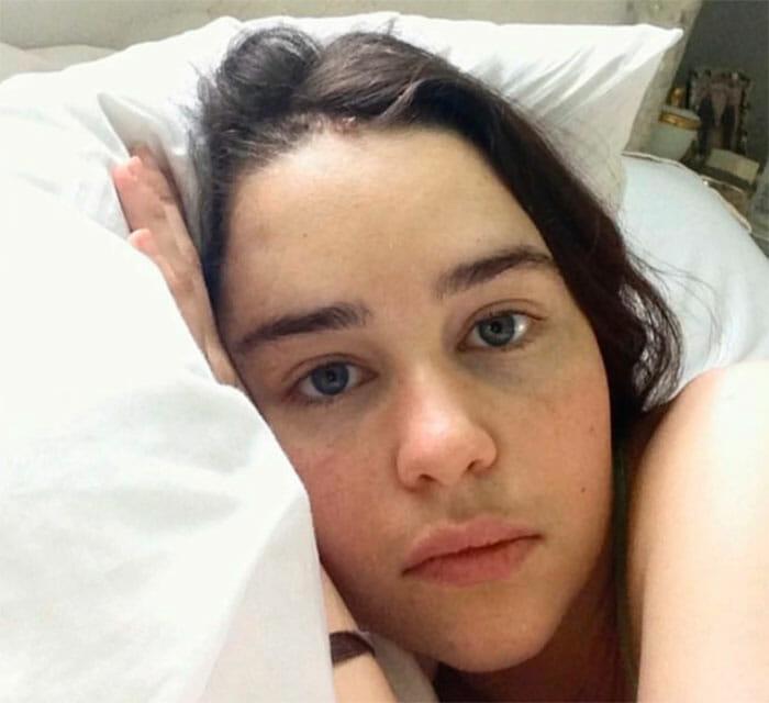 emilia clarke aneurisma 4