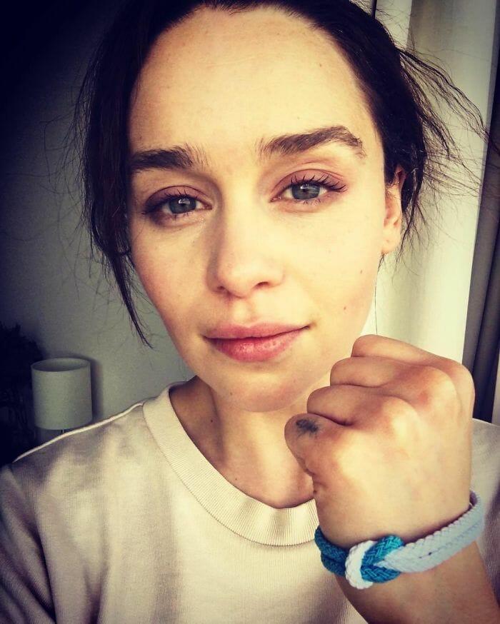 emilia clarke aneurisma 6