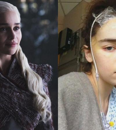 Emilia Clarke publica fotos inéditas e fala sobre os dois aneurismas que quase tiraram sua vida