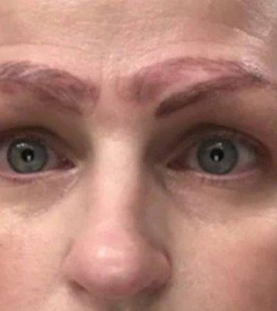 Americana fica com 4 sobrancelhas após procedimento estético dar ruim