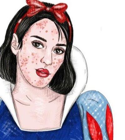 Branca de Neve com acne, Ariel gorda: conheça as princesas da vida real