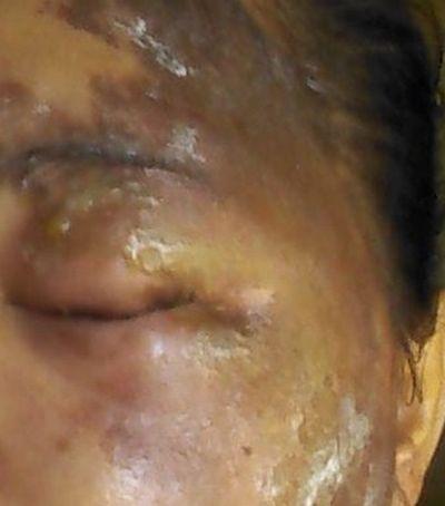 De carro e bicicleta: Polícia investiga autor de ataques com ácido no Sul