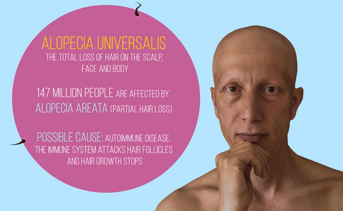 alopecia universal 1