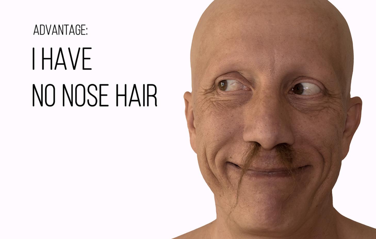 alopecia universal 15