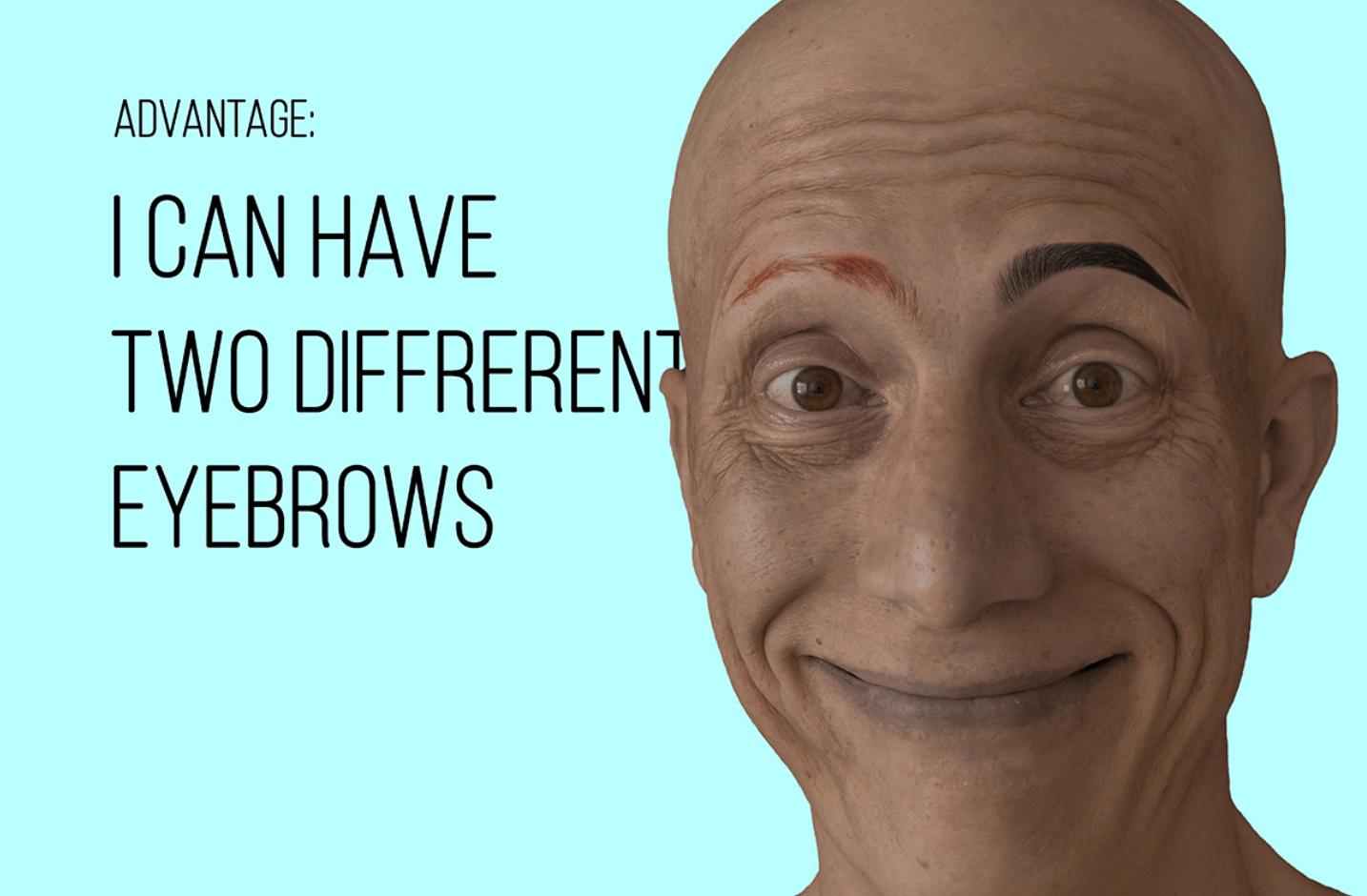 alopecia universal 17