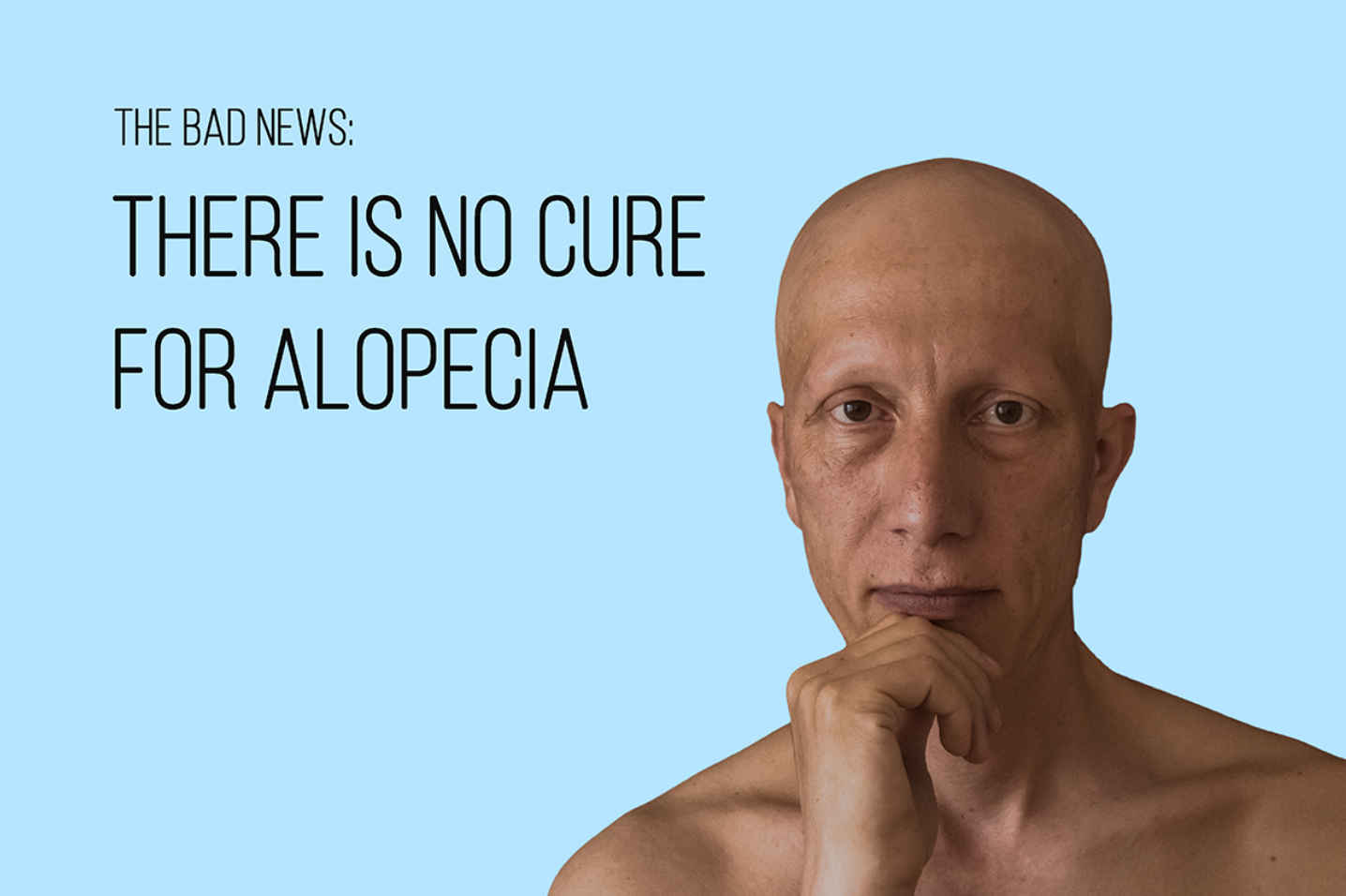 alopecia universal 21
