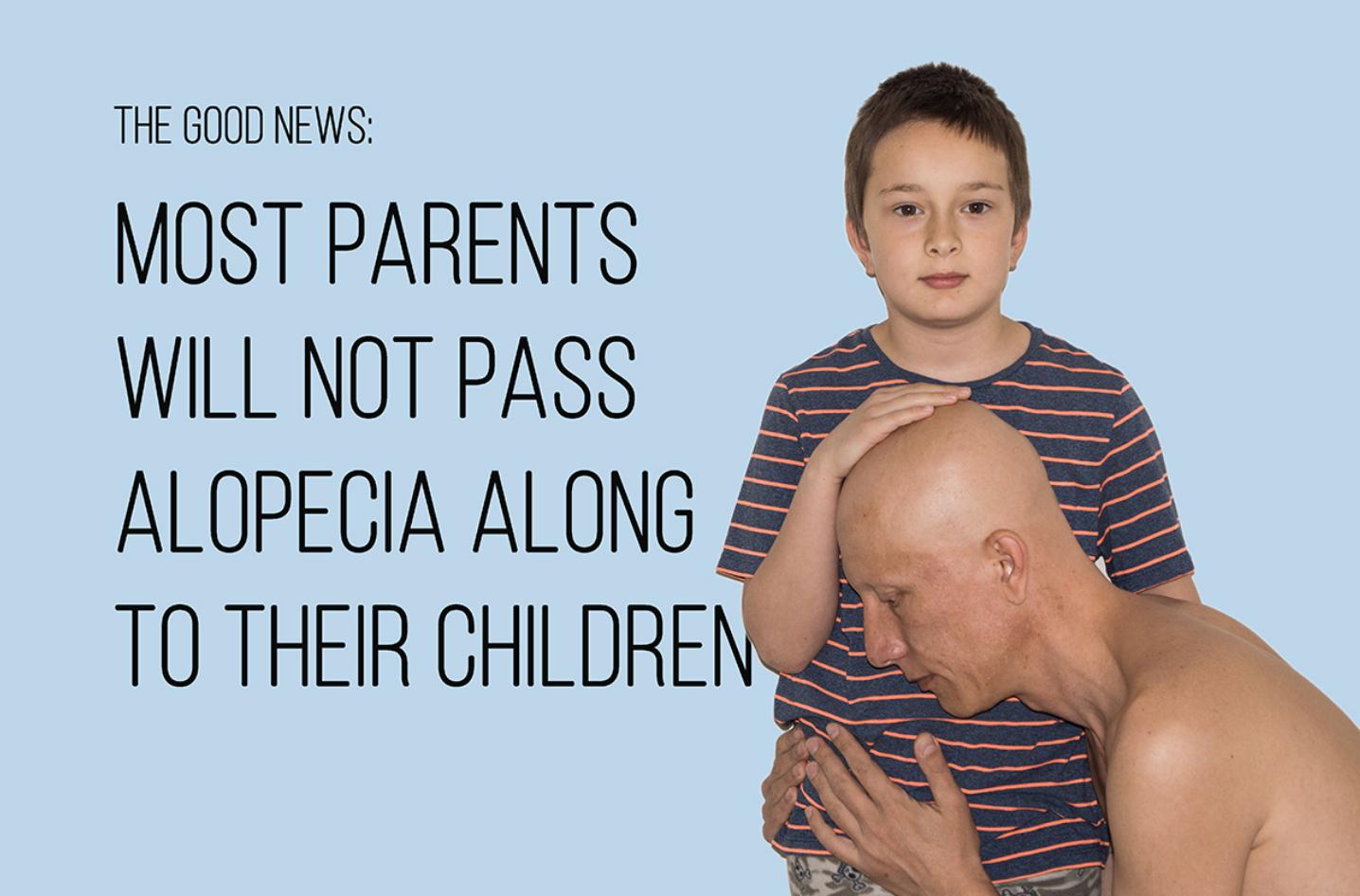 alopecia universal 22