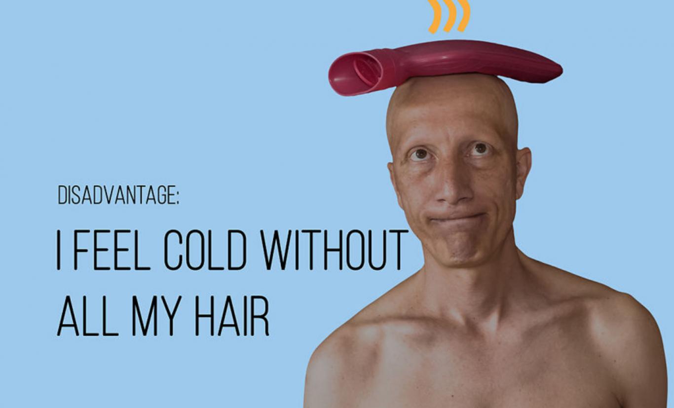 alopecia universal 4