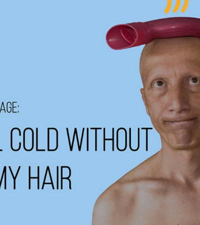 Homem usa bom humor para contar como é viver sem pelos