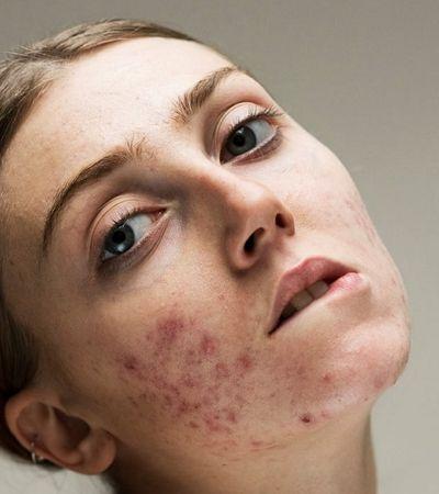 Exposição revela beleza das mulheres sem a 'pele perfeita' (e irreal) dos comerciais