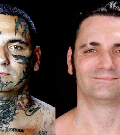 Ex-nazista decide remover tatuagens de ódio após se tornar pai