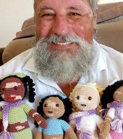 Avô com vitiligo cria bonecas inclusivas para acolher crianças com a mesma condição