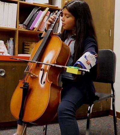 Ela pôde realizar o sonho de tocar violoncelo graças à prótese criada por estudantes
