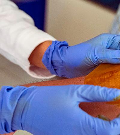 Cientistas criam adesivo que regenera pele de diabéticos e evita amputação